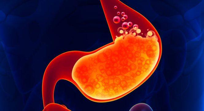 Ardor de Estómago: Causas y Remedios Naturales para Combatirlo